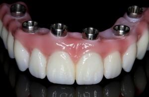 Implants Utica Syracuse Schenectady Ny Biogenic